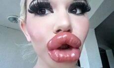 'Barbie da vida real', quer os maiores lábios do mundo