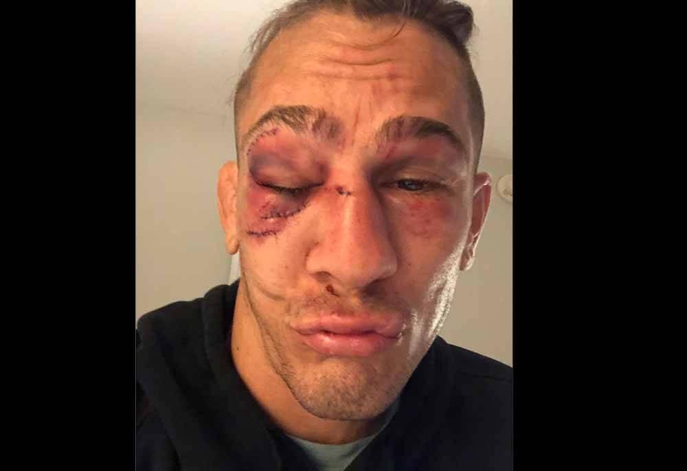 Astro do UFC posta foto de como ficou após derrota para Vicente Luque