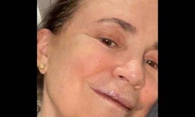 Regina Duarte relata que quebrou três dentes após cair em calçada por causa de celular. Foto: Instagram