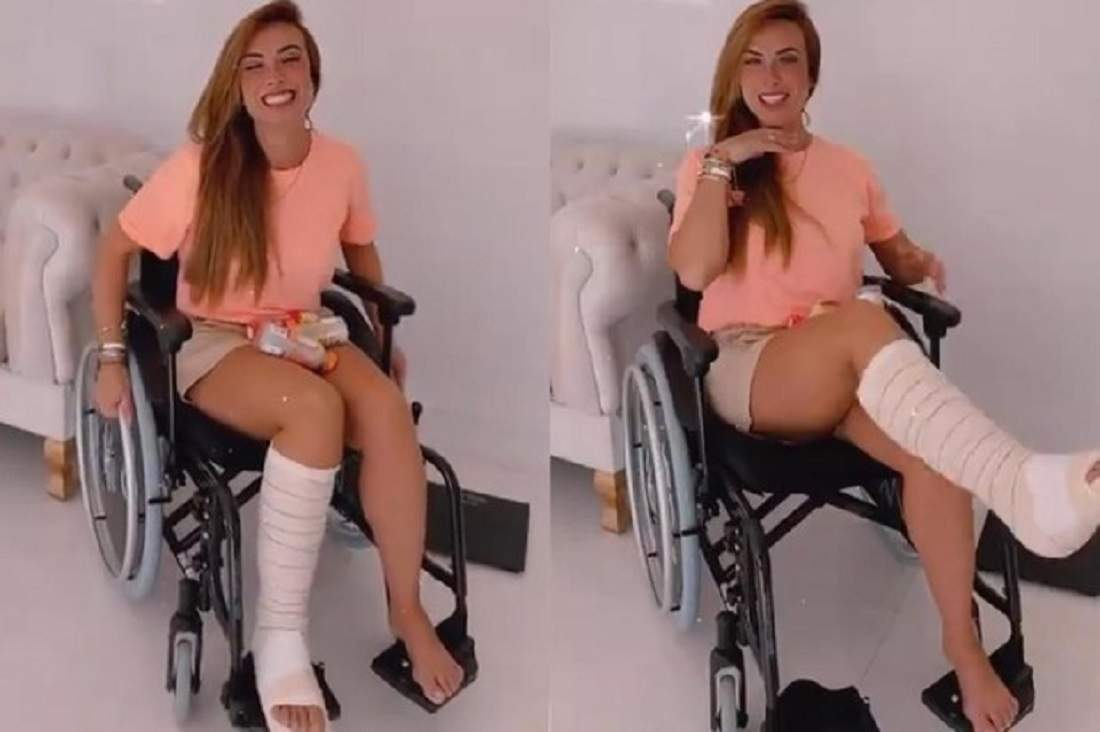 """Nicole Bahls conta sobre rotina após quebrar o pé: """"são poucos dias, mas estou sofrendo"""""""