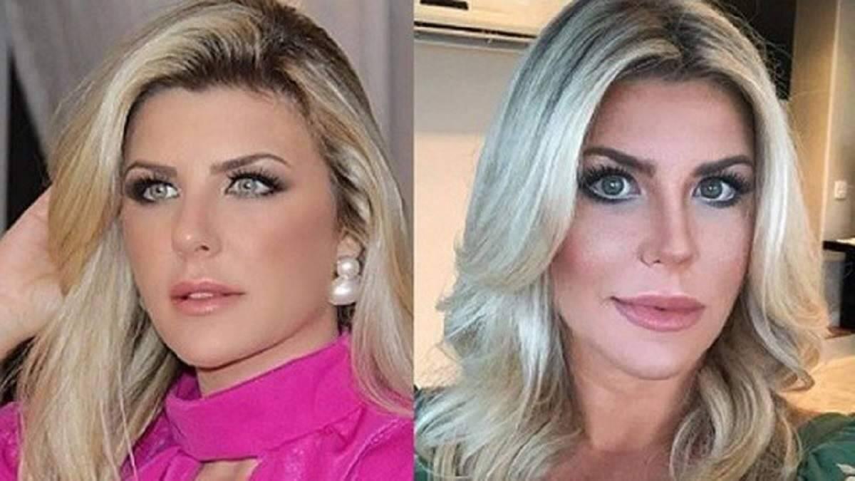 Íris Stefanelli postou foto do rosto e seguidores criticam procedimentos estéticos