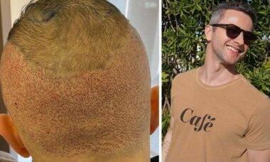 """Lucas Lima comemora transplante capilar e Sandy dispara: """"tô pegando esse bonitão"""""""