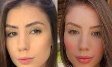 Maria Lina, a nova namorada de Whindersson Nunes, faz harmonização facial