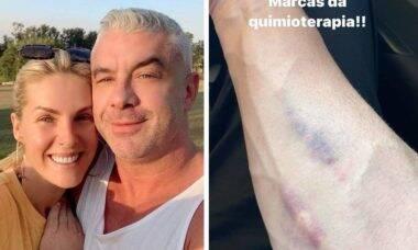 Alexandre Correa, marido de Ana Hickmann, mostra hematomas do tratamento contra o câncer