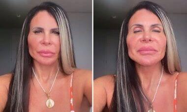 Gretchen mostra resultados de harmonização facial