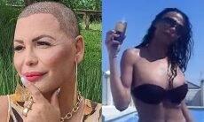 """Luisa Marilac desabafa sobre implante capilar: """"me perguntaram se estava com câncer"""""""
