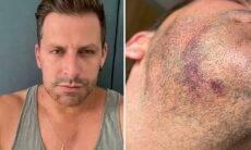 """Henri Castelli se emociona ao contar sobre agressão: """"Fui agredido covardemente"""""""