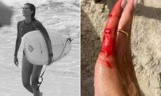 Isabella Fiorentino compartilha machucados depois de dia de surfe
