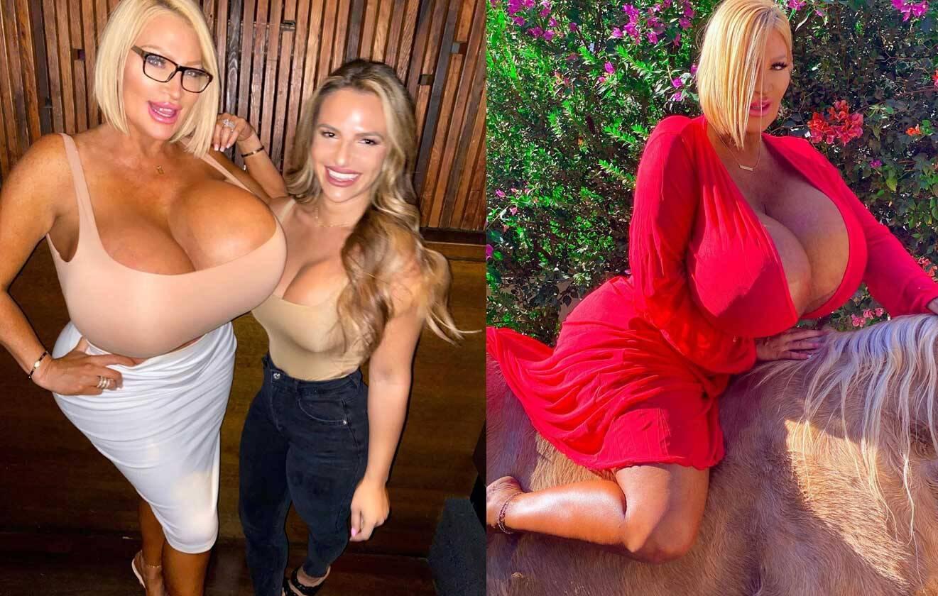 """Após série de cirurgias plásticas, modelo diz que ficou com """"bumbum de Bob Esponja"""" e seios tortos. Foto: reprodução Instagram"""