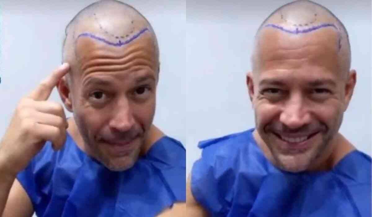 """Malvino Salvador faz procedimento de transplante capilar: """"vou sair com mais cabelo"""""""