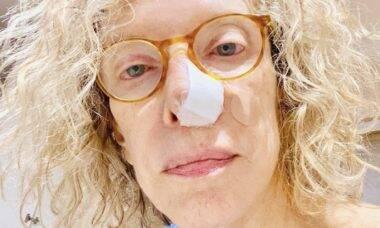 Marília Gabriela descobre câncer de pele na narina esquerda