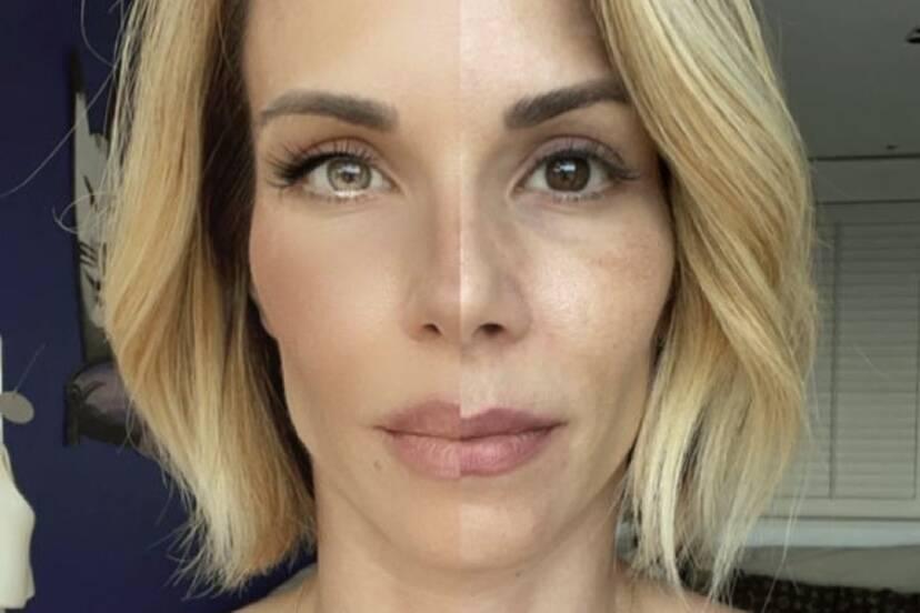 """Ana Furtado compara rosto com e sem filtro e reflete: """"Não aceitei mais ser infeliz"""""""