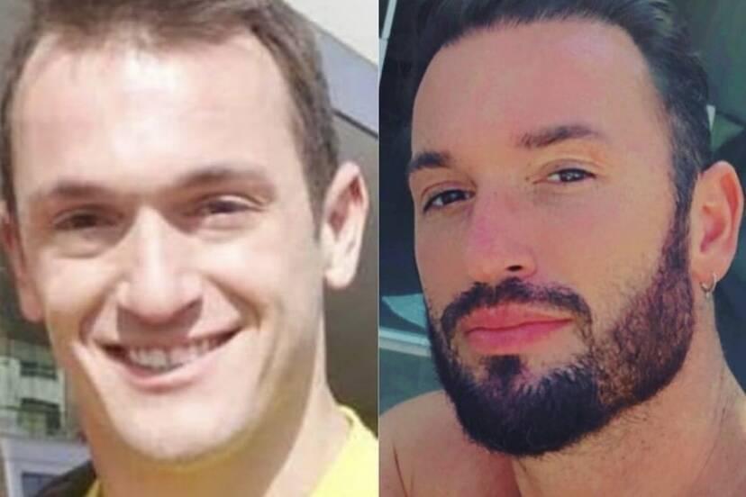 """Diego Hypolito posta antes e depois e lista procedimentos estéticos: """"Fiz uma reforma"""""""