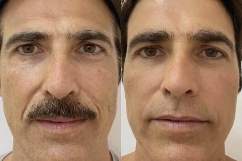 Reynaldo Gianecchini faz rejuvenescimento facial e impressiona com antes e depois