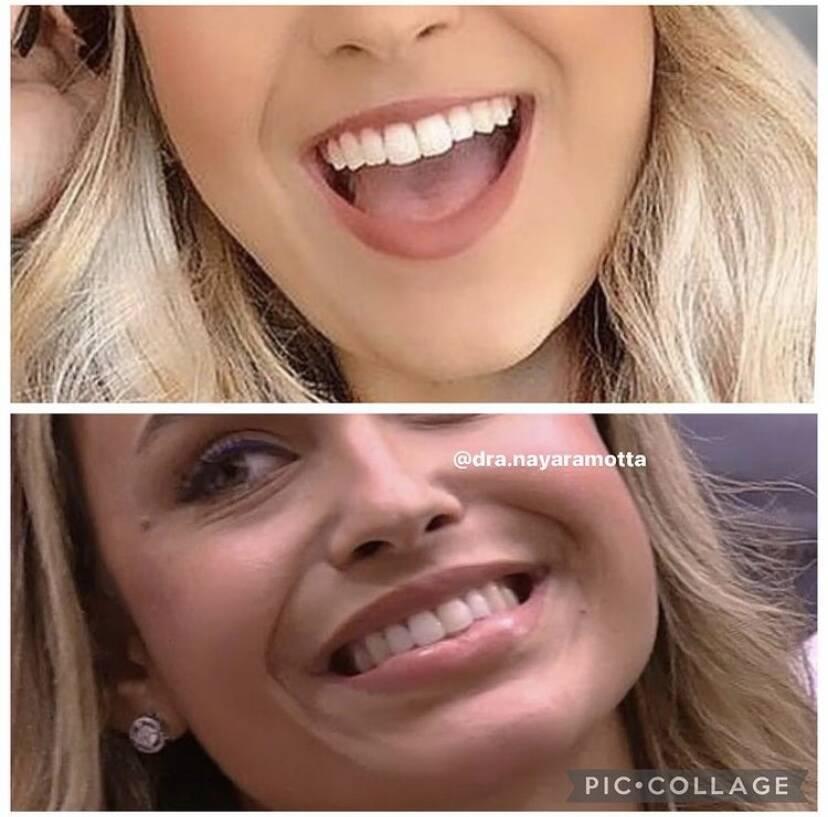 Confira o antes e depois da harmonização facial de Sarah do BBB 21