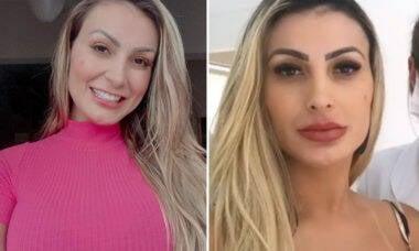 Andressa Urach faz preenchimento labial e surpreende com antes e depois