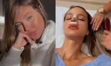Biah Rodrigues passa por cirurgia para corrigir buraco dentro do nariz