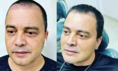 Cantor Renner surpreende ao exibir antes e depois da harmonização facial