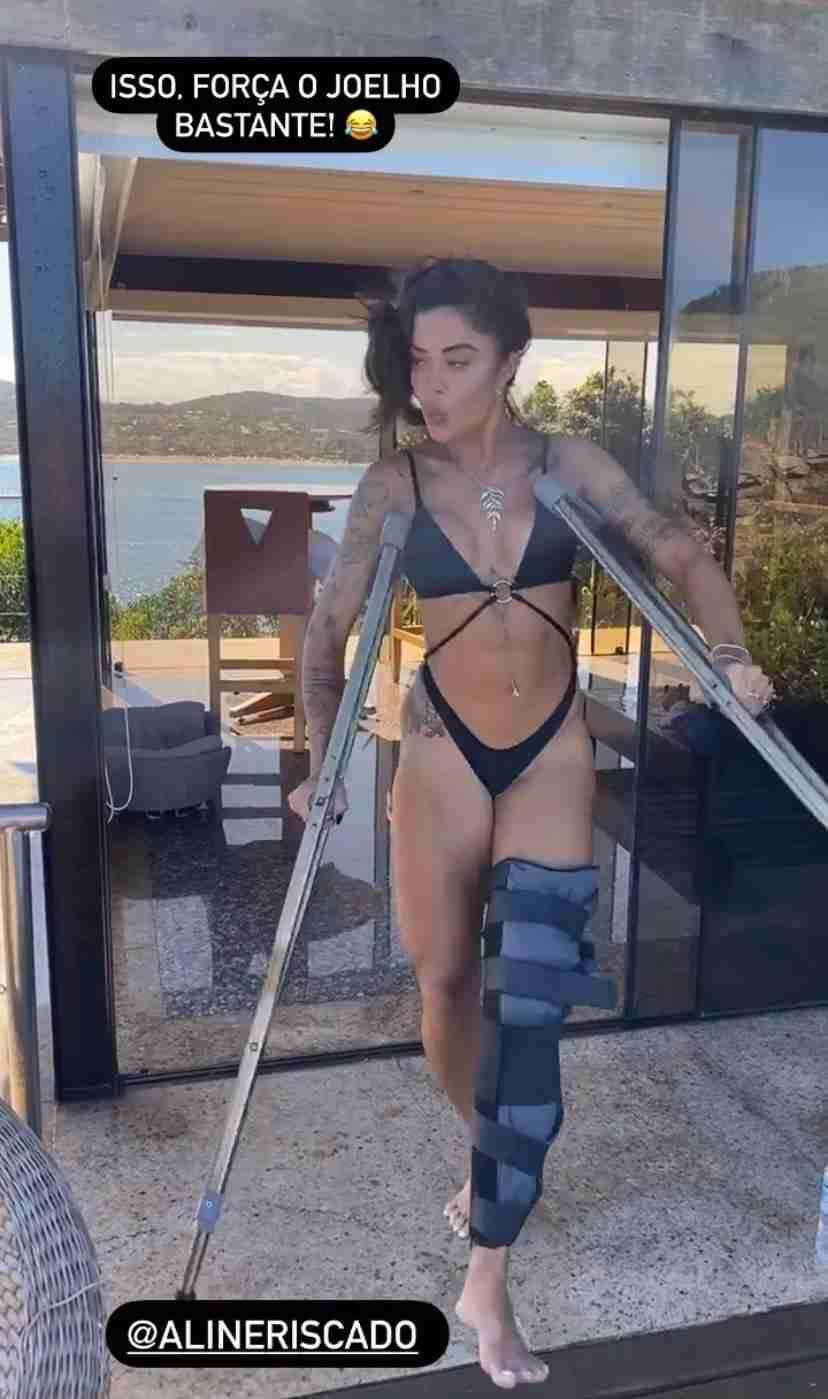 Após sofrer acidente, Aline Riscado posa de muleta e biquíni (Foto: Reprodução/Instagram)