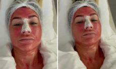 Dani Souza faz procedimento estético no rosto com placenta