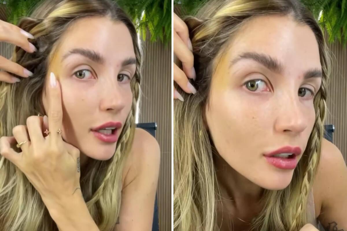 "Aline Gotschalg mostra resultado de fox eyes: ""Ainda está roxo"""