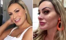 """Andressa Urach faz harmonização facial: """"Cara de rica"""""""