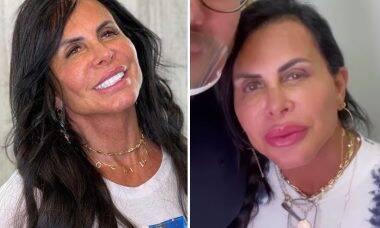 Gretchen faz novos procedimentos estéticos no rosto