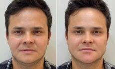 Antes e depois: Matheus, da dupla com Kauan, faz harmonização facial