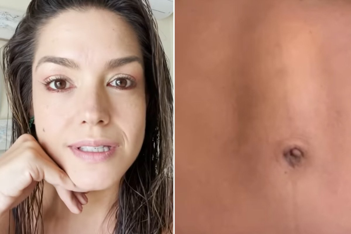Thais Fersoza revela que fez uma cirurgia para corrigir diástase abdominal