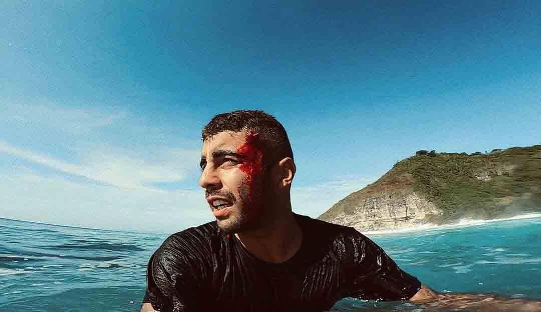 Pedro Scooby mostra pontos na cabeça após se machucar na Indonésia. Foto: Reprodução Instagram