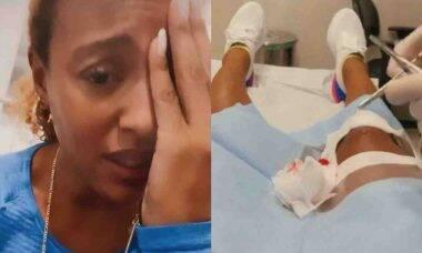 Sheron Menezzes sofre acidente doméstico e leva pontos: 'infância tardia'