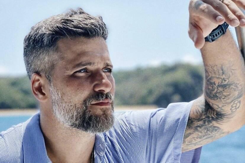 Bruno Gagliasso explica decisão de refazer transplante capilar