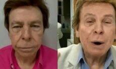 Nelson Rubens exibe antes e depois do rosto após a harmonização facial