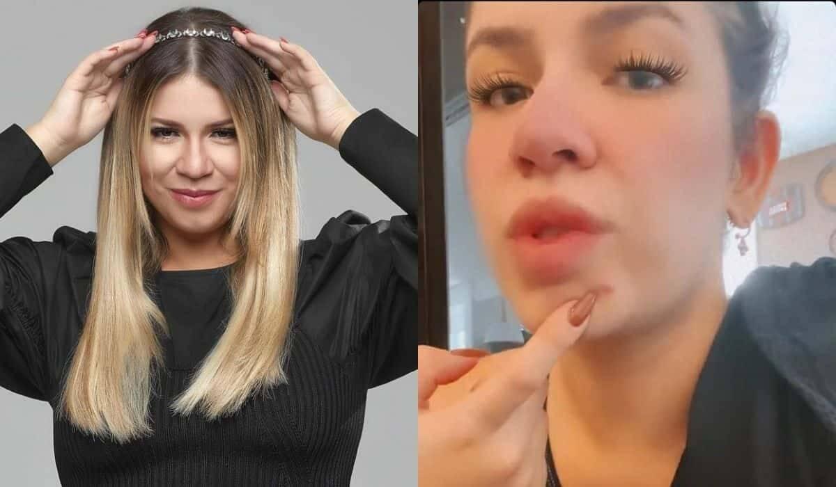 Marilia Mendonça desabafa sobre acnes após uso do DIU: 'não para'