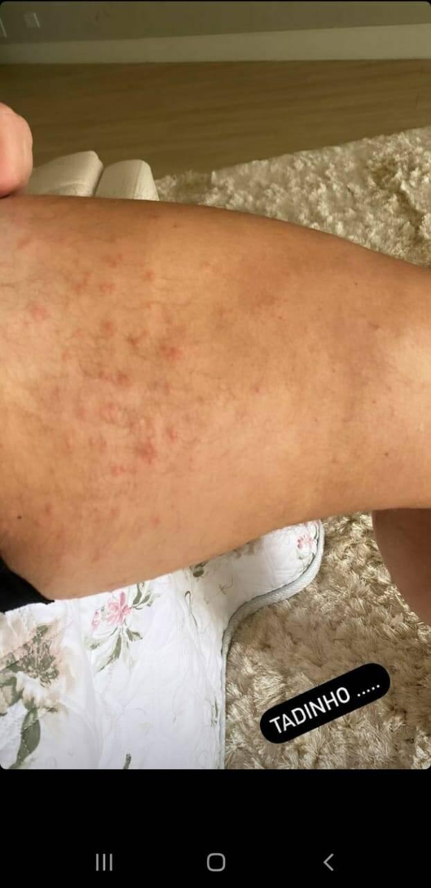 Poliana Rocha mostra pele de Leonardo após pegar sarna: 'tadinho' (Foto: Reprodução/Instagram)