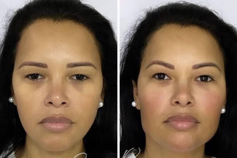 Ariadna Arantes faz harmonização facial; veja antes e depois