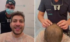 Caio Afiune, do BBB 21, faz transplante capilar
