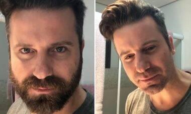 """Marlon raspa a barba depois de quase 15 anos: """"Resolvi dar uma mudada"""""""