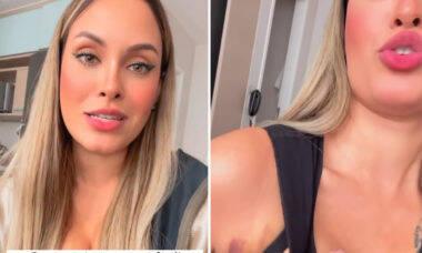 """Sarah Andrade desabafa sobre pós-operatório de plásticas: """"Parece que passou um caminhão"""""""