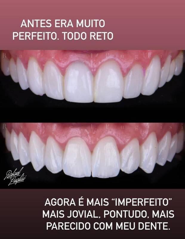 Gabriela Pugliesi muda lentes de contato dos dentes: 'mais imperfeito' (Foto: Reprodução/Instagram)