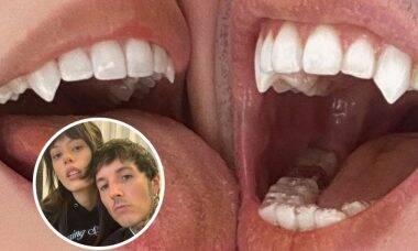 Oliver Sykes e esposa implantam presas de vampiro