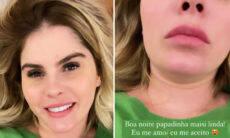 """Bárbara Evans mostra papada após ganhar peso: """"Me amo e me aceito"""""""