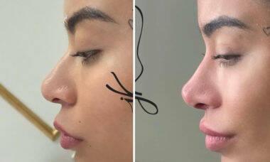 Rafaella Santos faz rinomodelação e retoca harmonização facial